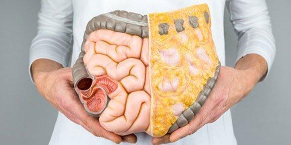 סרטן המעי הגס
