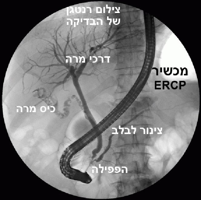 מכשיר ERCP בדרכי המרה