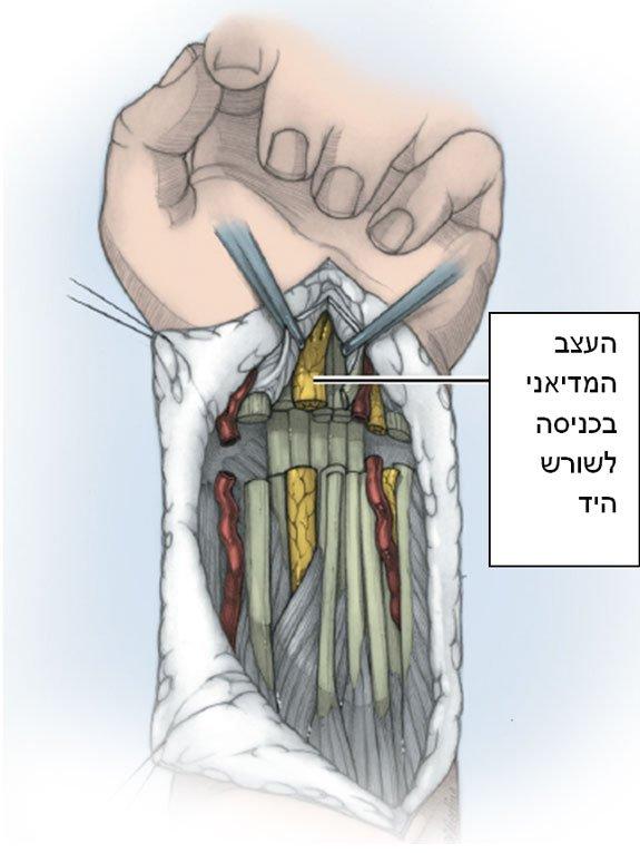 עצב כף היד