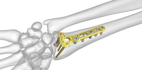 ניתוח שבר רדיוס מרוחק בכף היד